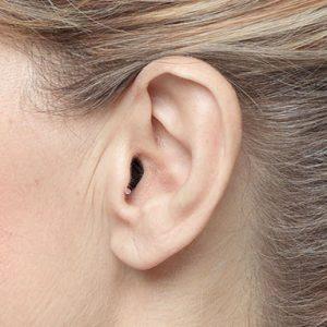 Aurem apparecchi acustici intrauricolari